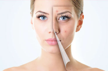 How to treat acne in pakistan in 15 mins